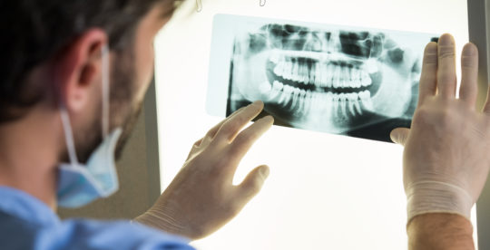 Tooth Extractions In Calgary