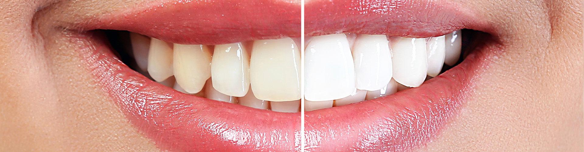Teeth Whitening In Calgary