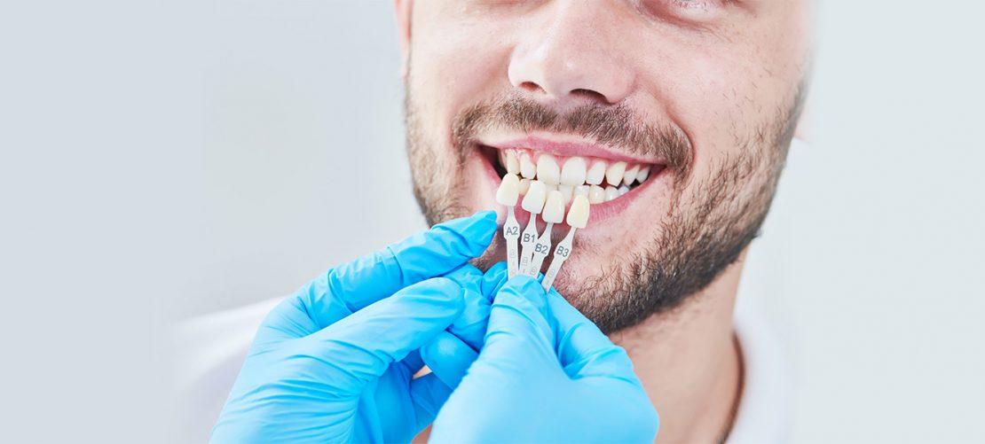 5 Ways to UseDental Veneers in Dentistry
